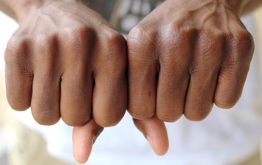 <strong>Photo illustration by Sam Mott |</strong> Bare-knuckled combat may be safer than boxing with gloves.
