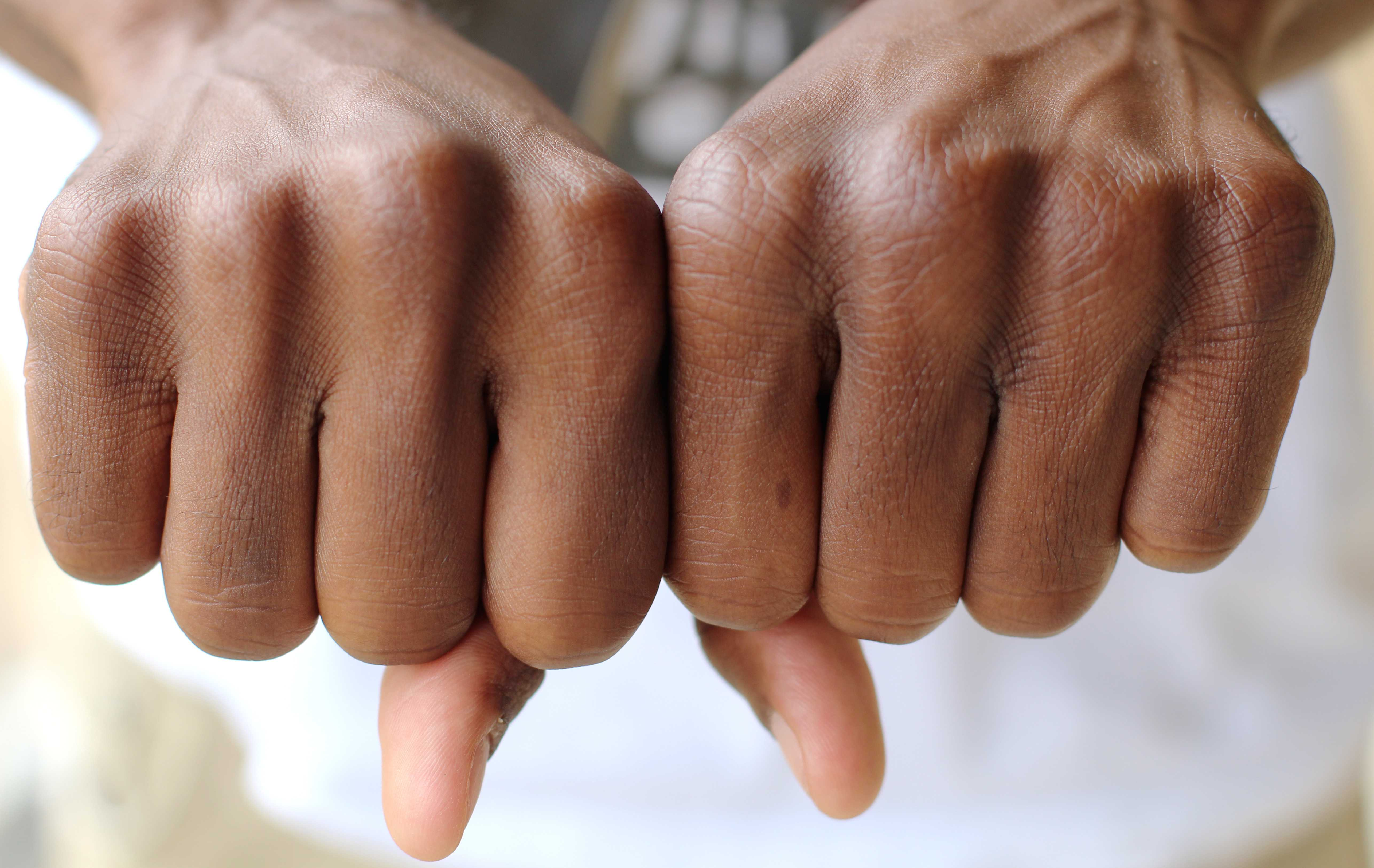 Photo illustration by Sam Mott | Bare-knuckled combat may be safer than boxing with gloves.
